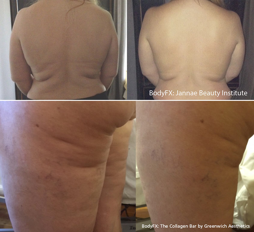 Body Fx Before After Photos