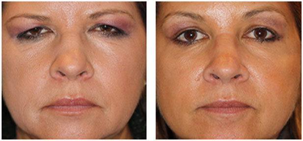 Botox Injection Brow lift and open eye look