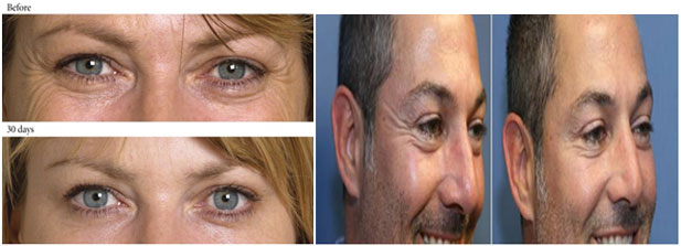 Botox Injection Crow's feet (Smile Lines)