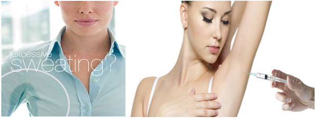 Botox Injection Excessive sweating from the underarms