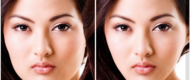 Botox Injection Masseter reduction