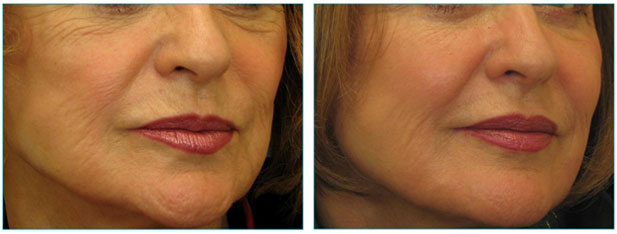 Botox Injection Nefertiti neck lift