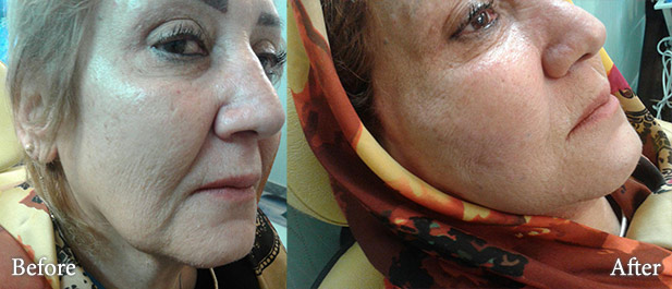 dermal filler before and after photo