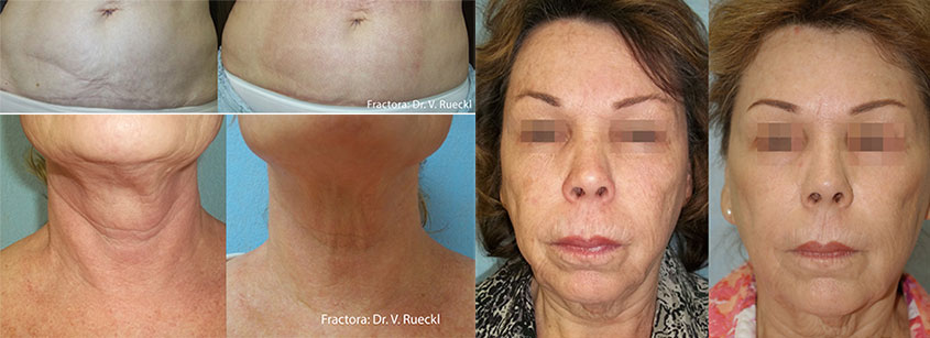Fractora Before After Photo