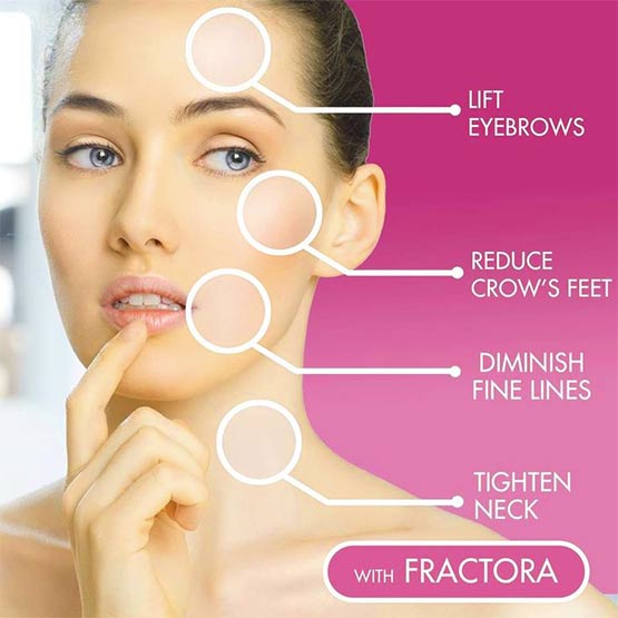 Fractora Treatment Areas