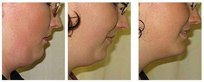 Injection Lipolysis Double Chin Before and After