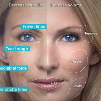 lip, cheek and chin augmentation services in toronto