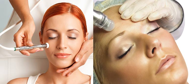 microdermabrasion cosmetic treatment