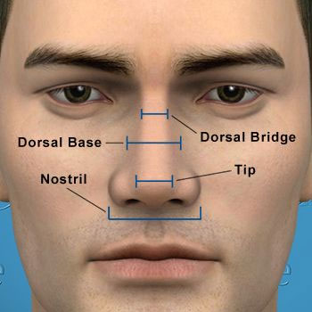 non-surgical nose job traetment