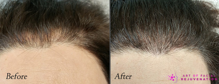 scalp microblading before and after photo 1