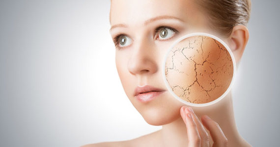 skin dryness tips and remedy