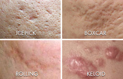 Acne Scars Types