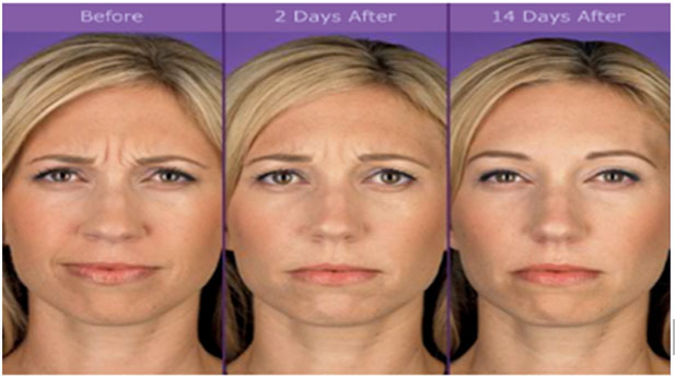 "Botox Injection Frown lines between the eyebrows ""11"""