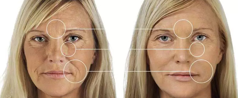dermal filler restore your youth before and after