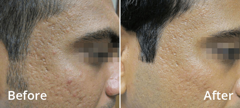 Fractora Before After Photo 1