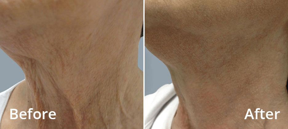 Fractora Before After Photo 4