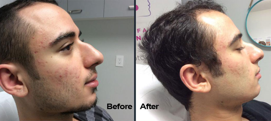 Fractora Before After Photo 9