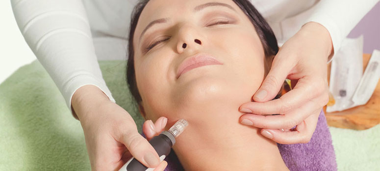 Getting Know Microneedling