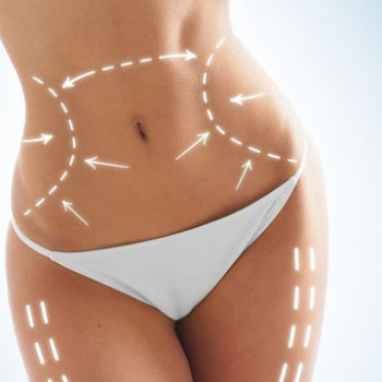 Injection Lipolysis Service
