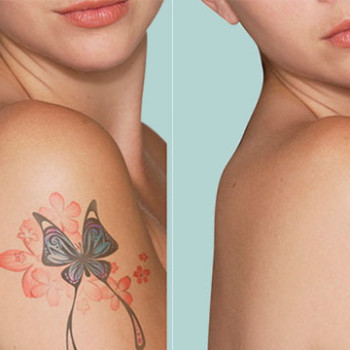 Spot and tattoo removal