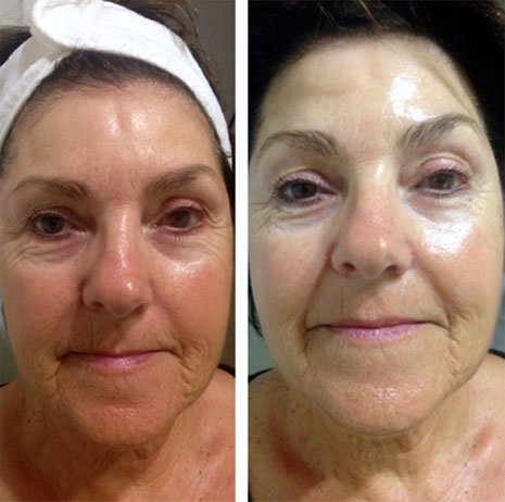thread lifting before after for women