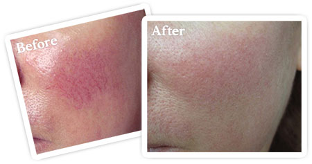 vascular lesions and broken capillaries before after photo